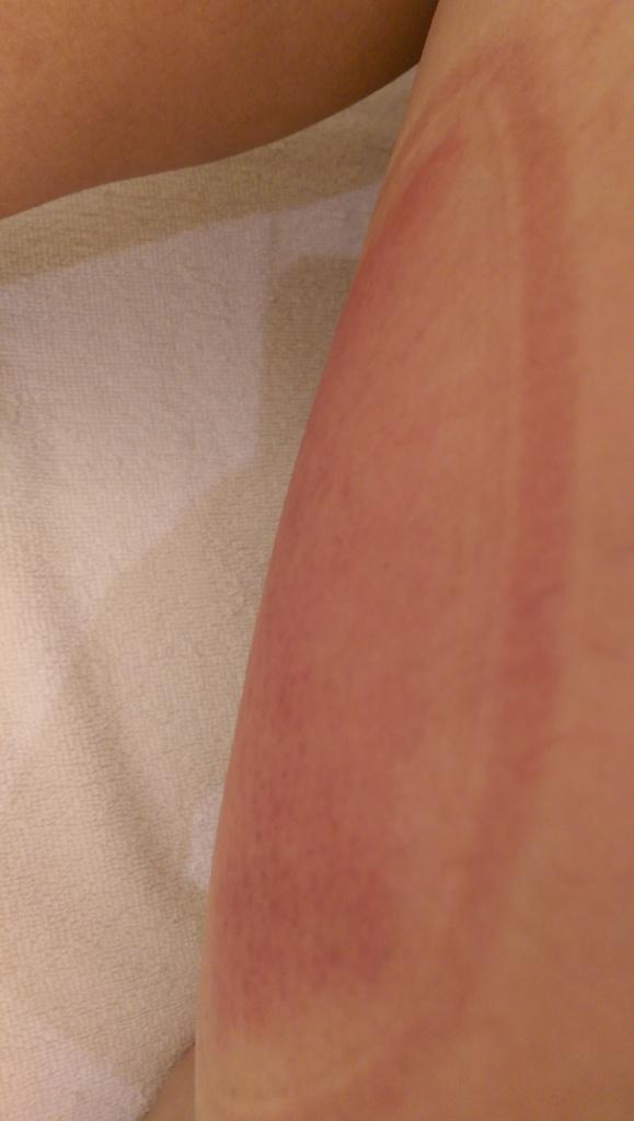 冷凍部位會有點紅,亦可能出現瘀痛,但只會持續1天左右。